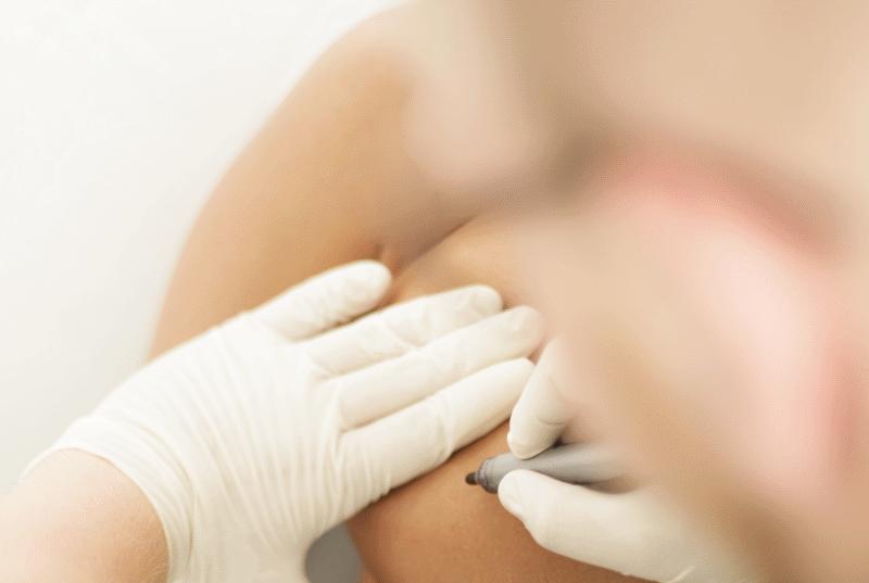Operaciones de pecho con IM Clinic recibe opiniones positivas